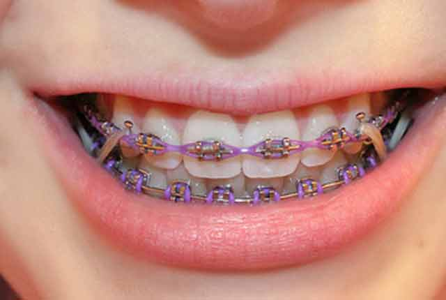 Smiling Braces With Rubber Bands