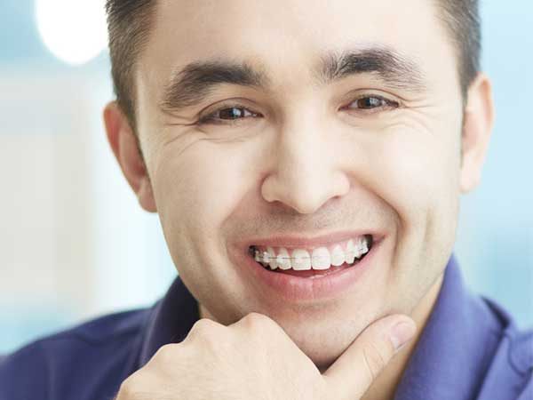man wearing 6 month smile braces