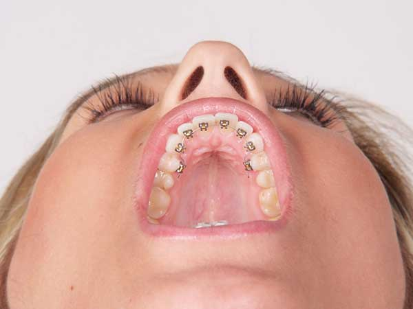 Woman wearing lingual braces