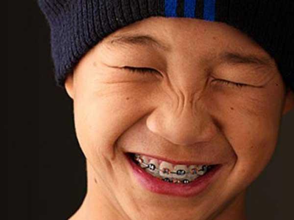 Boy Wearing Metal Braces