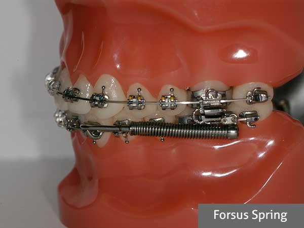forsus spring orthodontic treatment