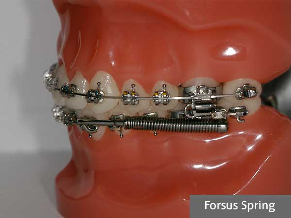 forsus spring orthodontic treatment