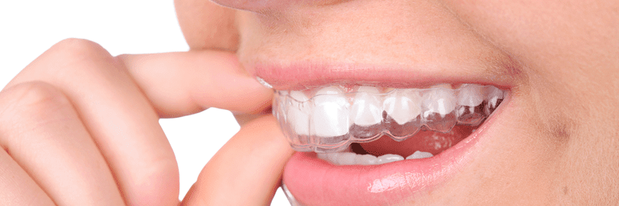 Is Invisalign® for you?