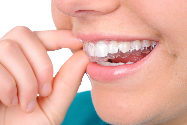 Girl putting invisible aligner in mouth