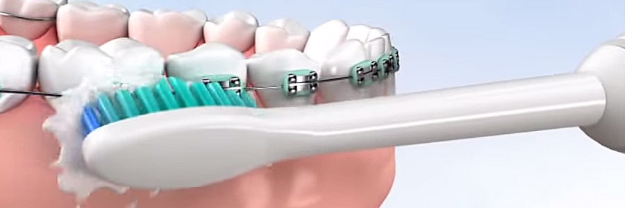 brushing braces with Sonicare toothbrush