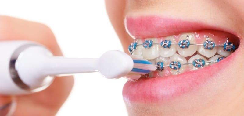 Can I use a sonic electric toothbrush with braces