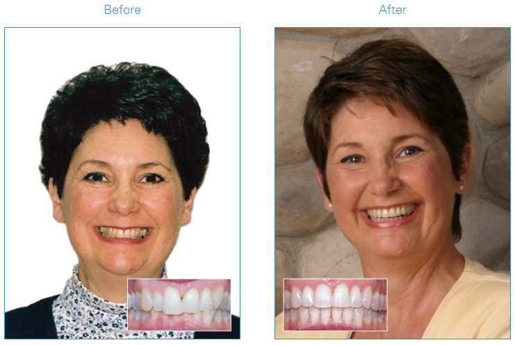 Woman before and after using Damon Braces