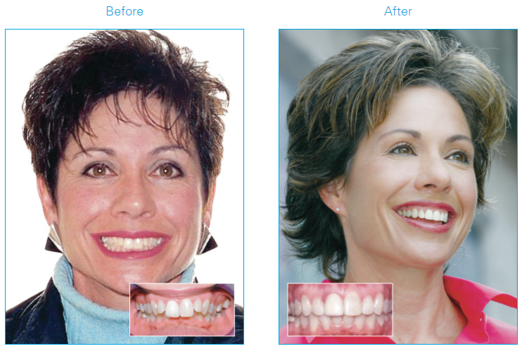 Woman before and after using Damon®System braces