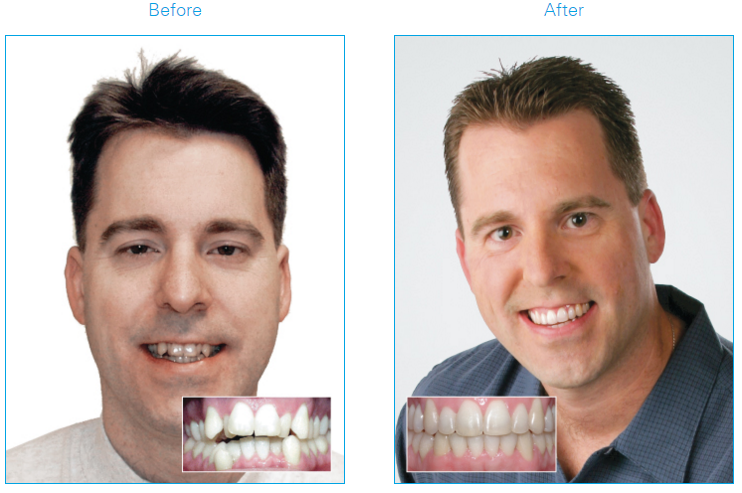 Man before and after using Damon®System braces