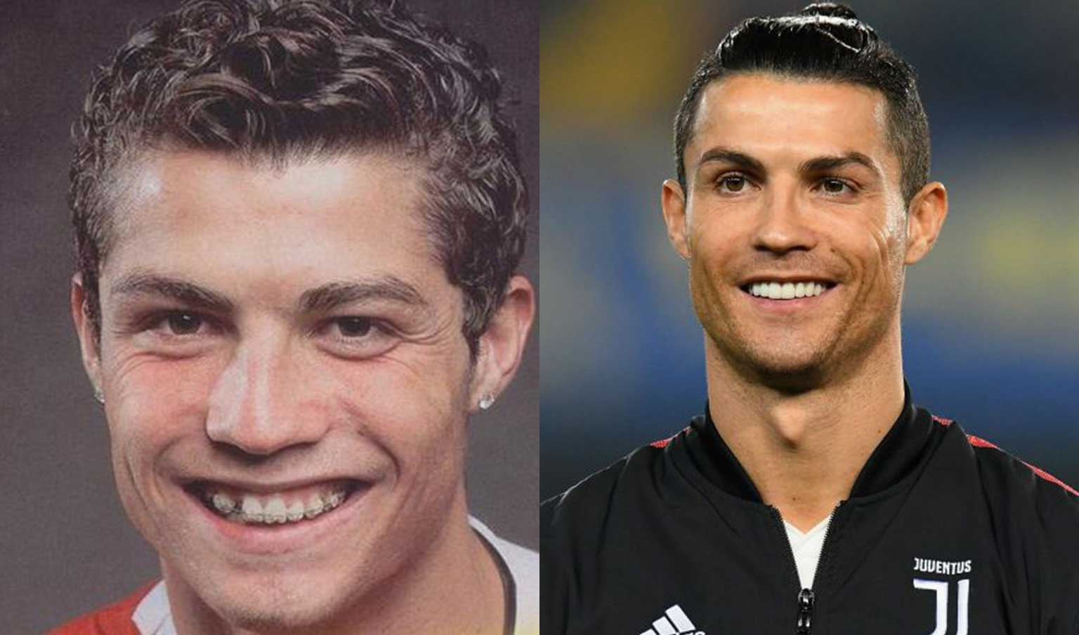 Cristiano Ronaldo during and after treatment with ceramic braces