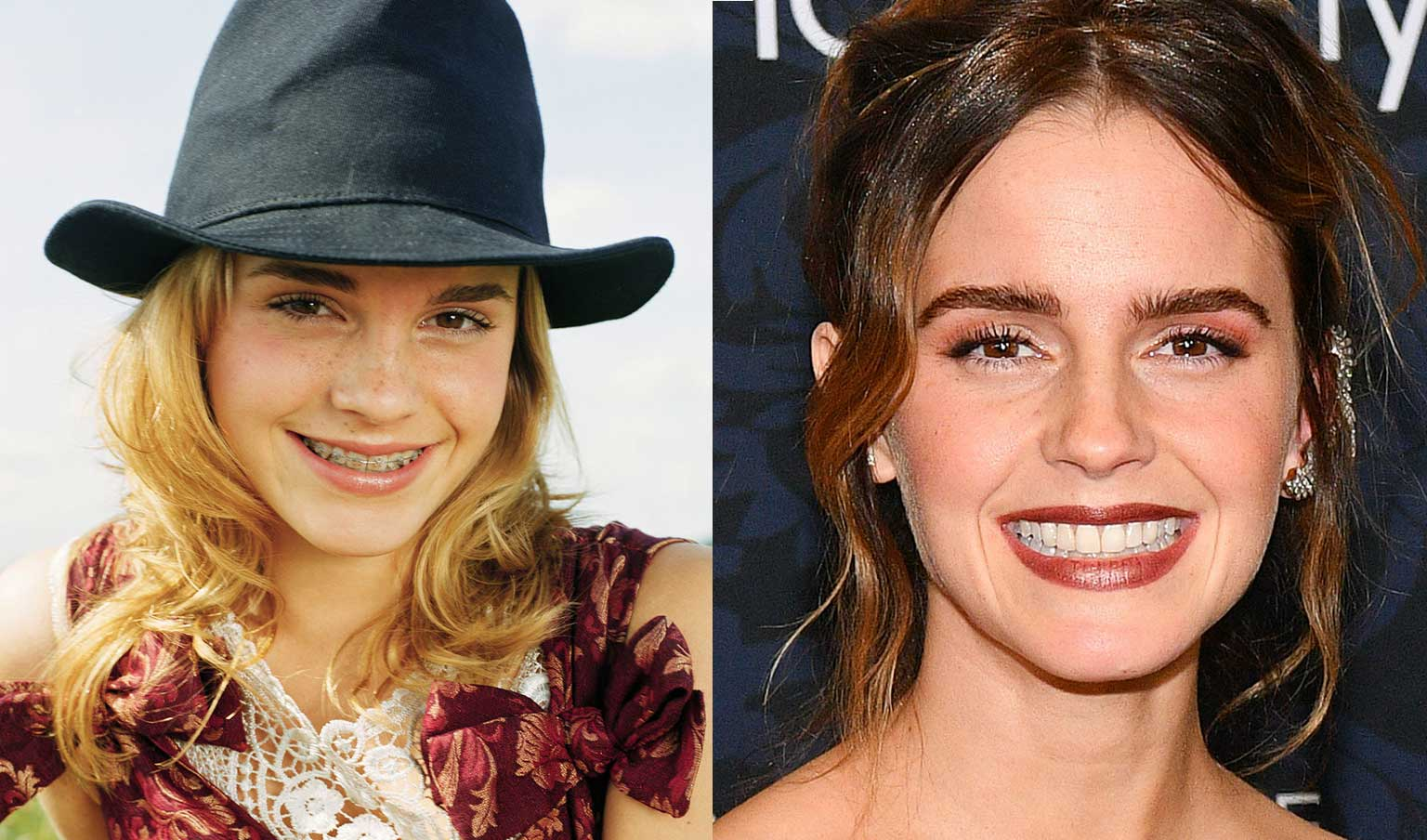 Emma Watson celebrities with braces before and after