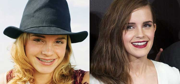 Emma Watson with braces and after braces