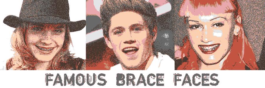 Famous Brace Faces