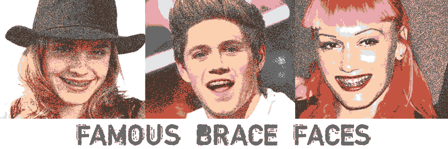 Stylized image of Emma Watson, Niall Horan and Gwen Stefani wearing braces