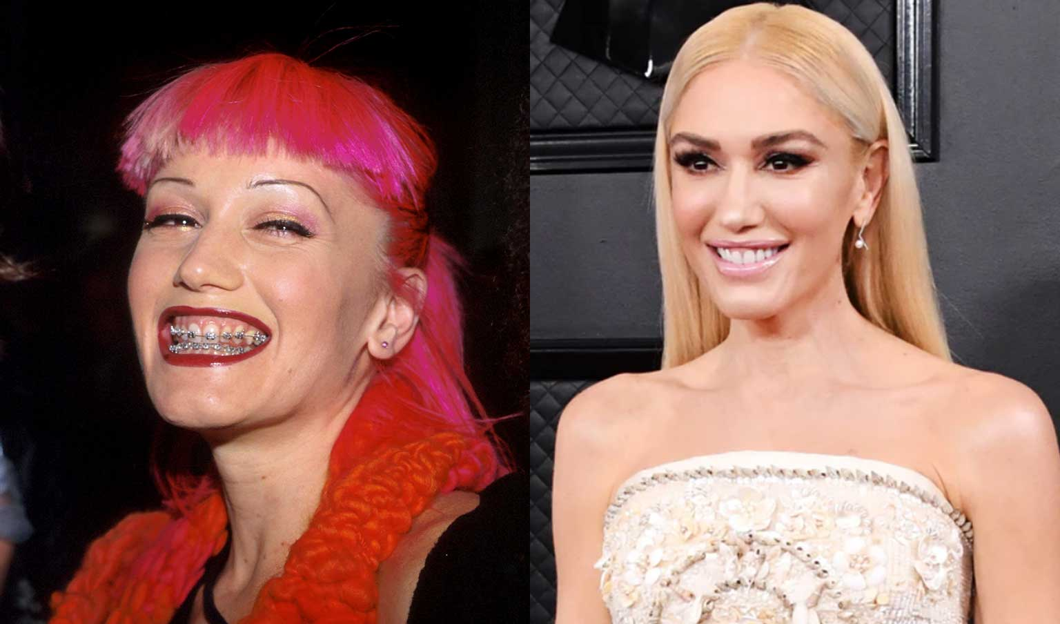 Gwen Stefani with braces and after braces