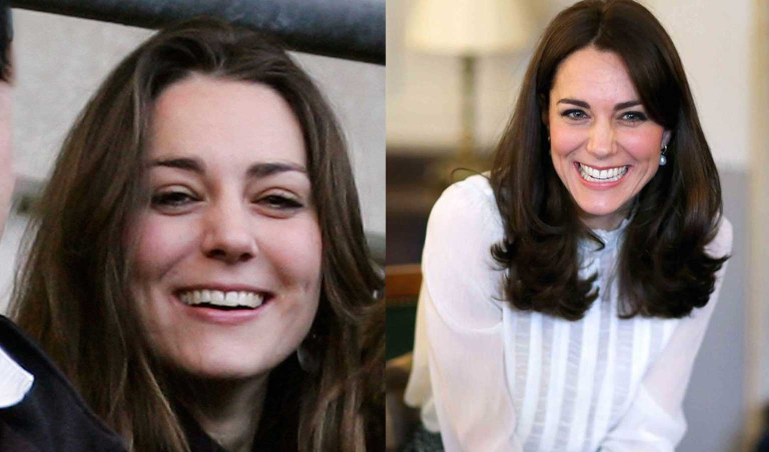 Kate Middleton before and after wearing lingual braces