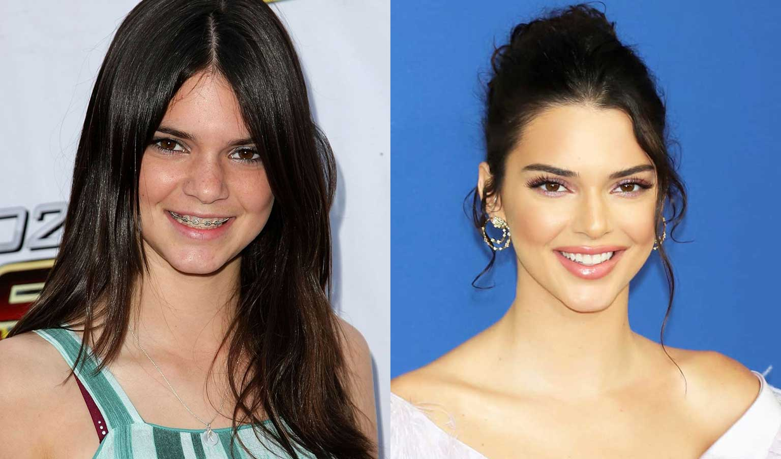 Kendall Jenner celebrities braces before and after