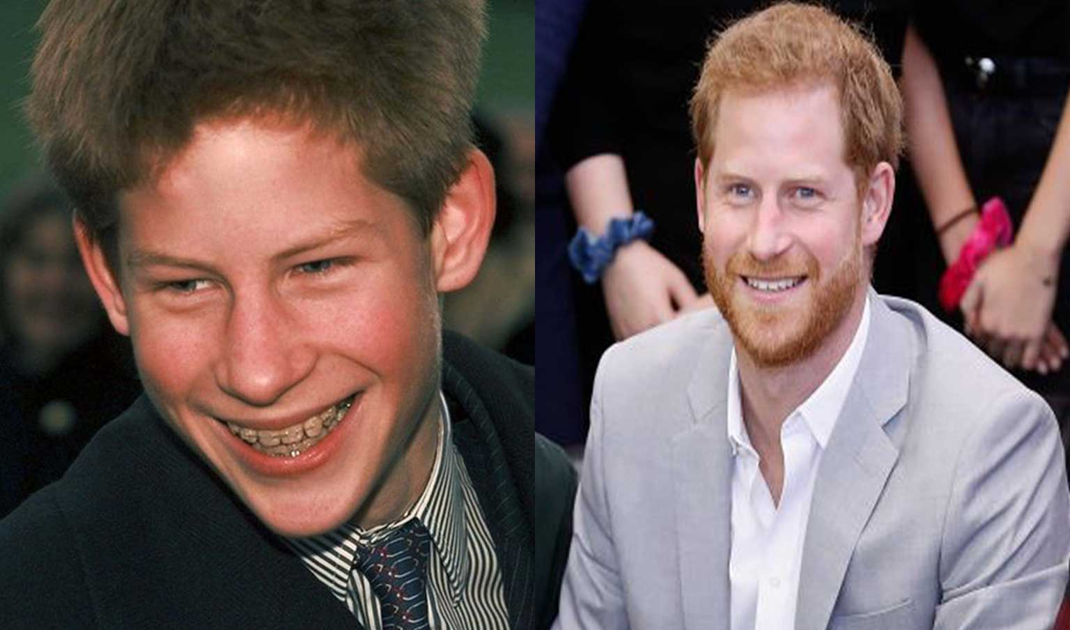 Prince Harry before and after orthodontic treatment