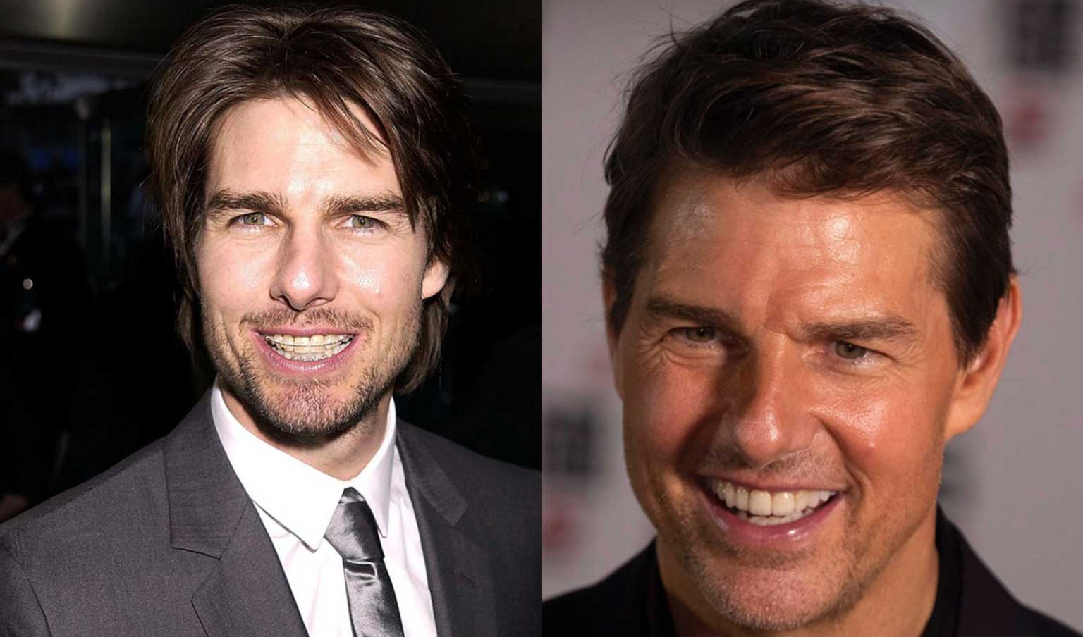 Before and after Celebrity Tom Cruise in ceramic braces