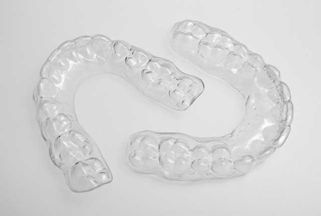 clear orthodontic retainer