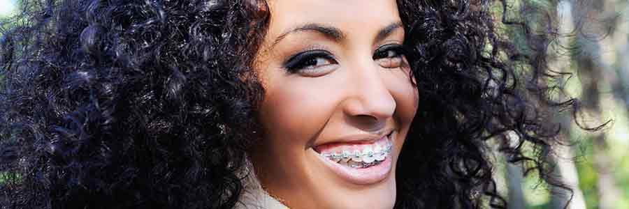 beautiful woman wearing metal braces