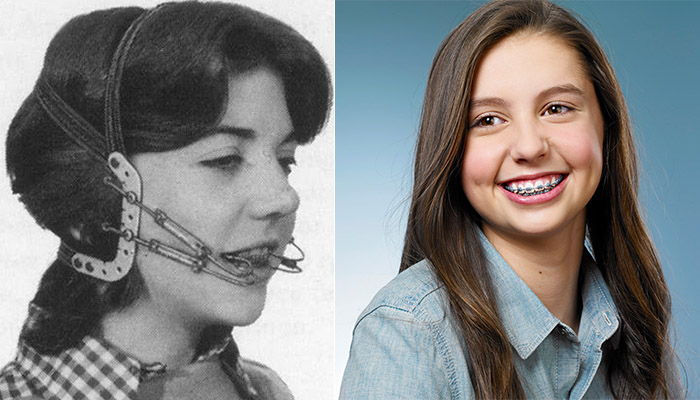 Metal braces then vs. now