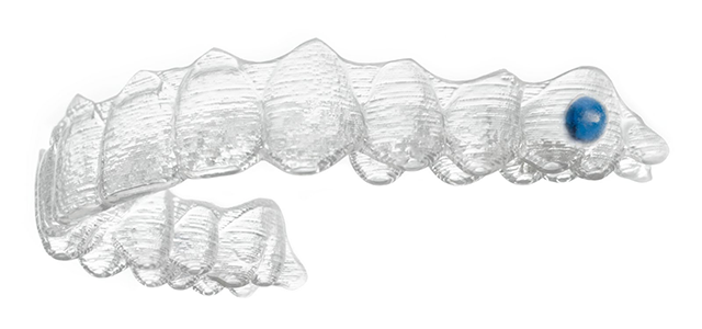 Invisalign Teen clear aligner with blue compliance indicator