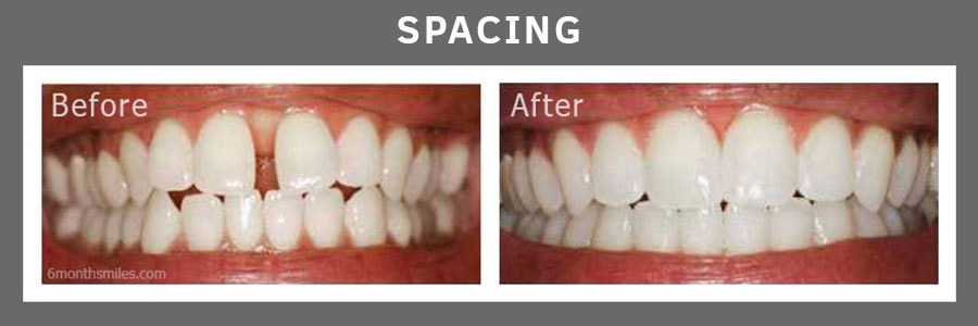 6 Month Smiles® Before and After Photos