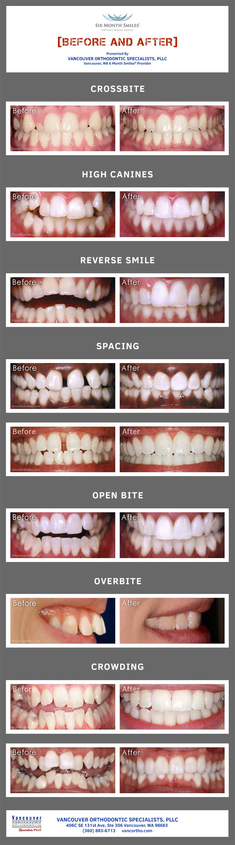 6 Month Smiles® Before and After Photos in One Graphic
