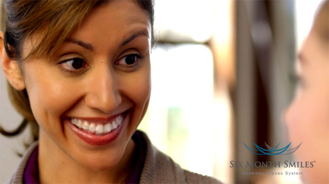 Smiling woman wearing 6 month smiles clear braces