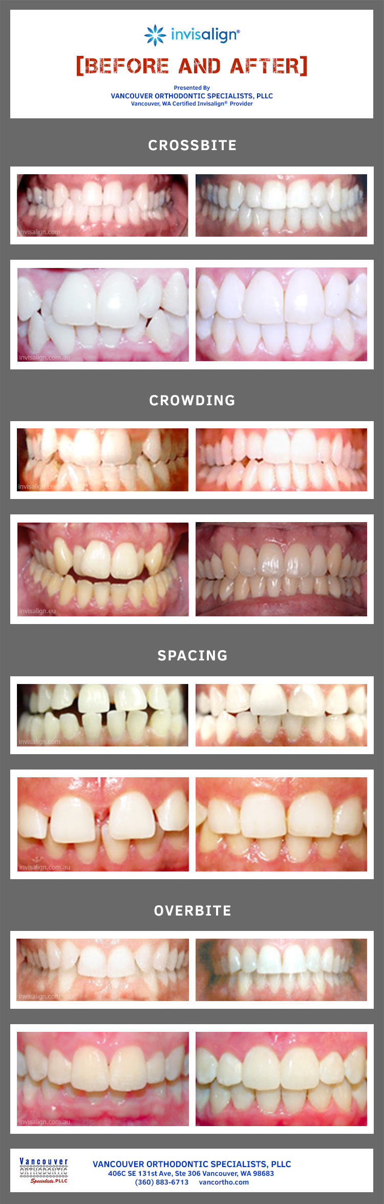 results of Invisalign orthodontic treatment