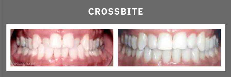 Invisalign Results-Before and After Photos