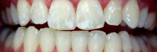 avoid white spots on teeth after braces removed