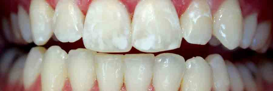 How to Prevent White Spots from Forming on Teeth While Wearing Braces