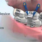 Orthodontic Temporary Anchorage Device (TAD), Mini-Screw, Mini-Implant