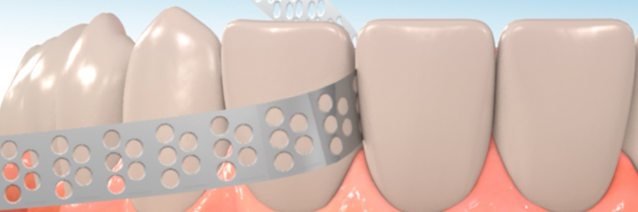 interproximal reduction during orthodontic treatment