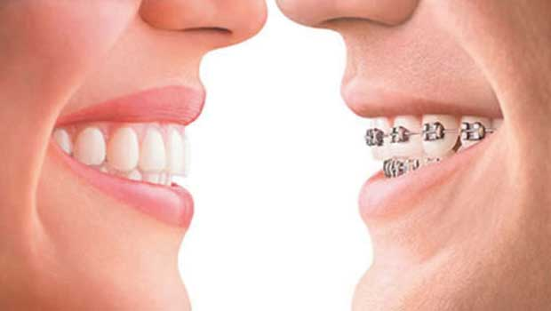 Invisalign vs braces and pros and cons of each