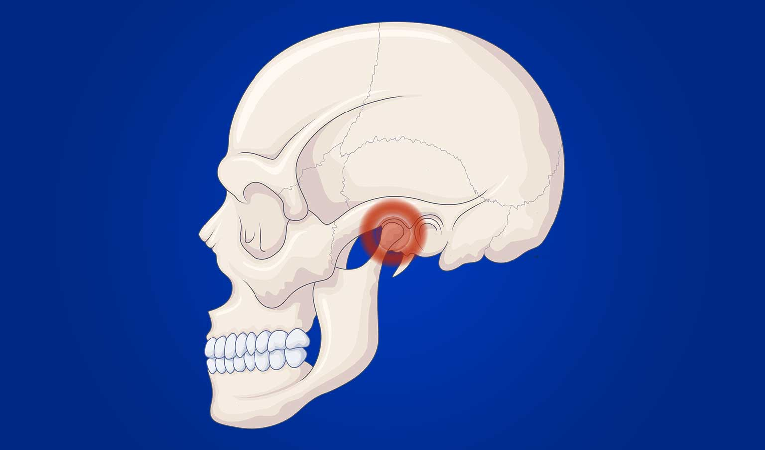 model of human skull on blue background with TMJ area highlighted in red